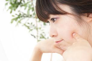 肌荒れをケアする若い女性の写真素材 [FYI04656784]