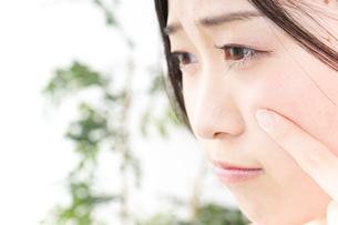 ニキビ・肌荒れの写真素材 [FYI04665946]