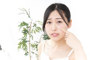 ニキビ・肌荒れの写真素材 [FYI04665952]