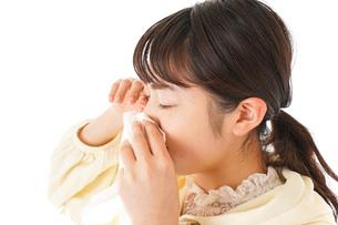 花粉症・アレルギーで苦しむ若い女性の写真素材 [FYI04716170]
