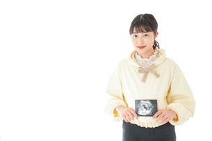 エコー画像を持つ若い妊婦の女性の写真素材 [FYI04716220]