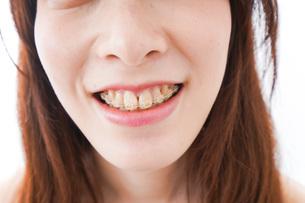 歯列矯正をする若い女性の写真素材 [FYI04719965]