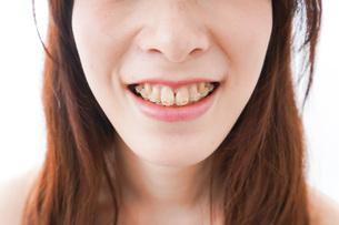 歯列矯正をする若い女性の写真素材 [FYI04719966]