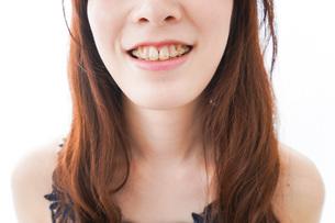 歯列矯正をする若い女性の写真素材 [FYI04719967]