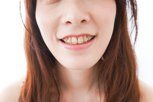 歯列矯正をする若い女性の写真素材 [FYI04719968]