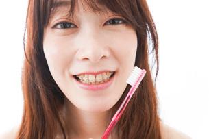 歯列矯正をする若い女性の写真素材 [FYI04719971]