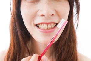 歯列矯正をする若い女性の写真素材 [FYI04719972]