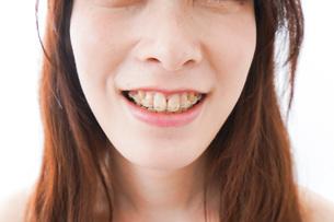 歯列矯正をする若い女性の写真素材 [FYI04719976]