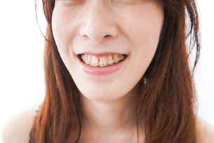 歯列矯正をする若い女性の写真素材 [FYI04719977]