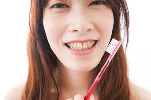 歯列矯正をする若い女性の写真素材 [FYI04719978]