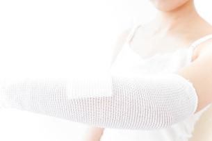 腕のケガをした女性の写真素材 [FYI04721887]