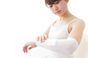 腕のケガをした女性の写真素材 [FYI04721900]