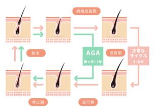 毛髪・ヘアサイクル/正常なサイクルとAGAの比較イラストのイラスト素材 [FYI04732929]