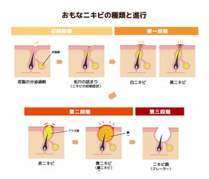 おもなニキビの種類と症状の進行 イラストのイラスト素材 [FYI04745280]