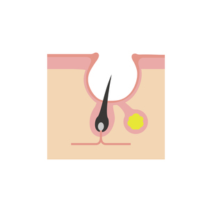 皮膚断面図 ニキビの進行 イラスト / ニキビ痕(クレーター)のイラスト素材 [FYI04745289]