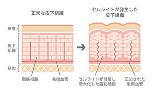 健康な皮膚とセルライトが発生した皮膚の断面比較イラストのイラスト素材 [FYI04745299]