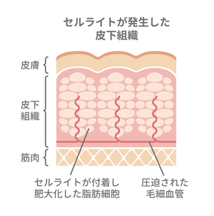 セルライトが発生した皮膚の断面図イラストのイラスト素材 [FYI04745305]