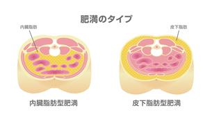 腹部断面図イラスト「肥満のタイプ」/ 内臓脂肪、皮下脂肪のイラスト素材 [FYI04745321]