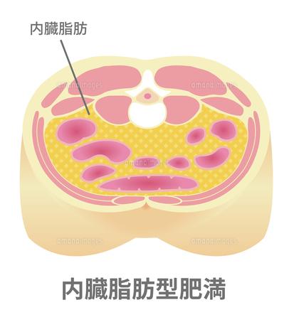 腹部断面図イラスト「肥満のタイプ」/ 内臓脂肪型肥満のイラスト素材 [FYI04745323]