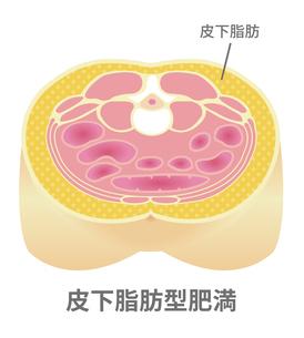 腹部断面図イラスト「肥満のタイプ」/ 皮下脂肪型肥満のイラスト素材 [FYI04745324]