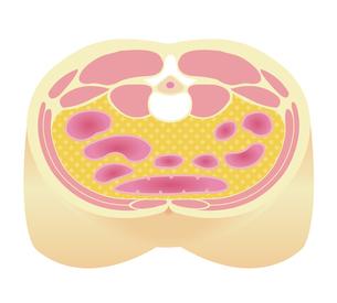 腹部断面図イラスト「肥満のタイプ」/ 内臓脂肪型肥満のイラスト素材 [FYI04745326]