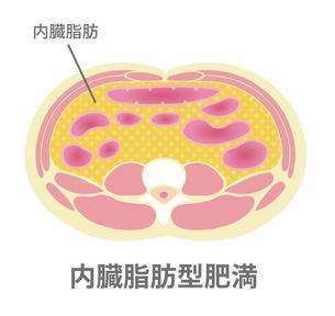 腹部断面図イラスト「肥満のタイプ」/ 内臓脂肪型肥満のイラスト素材 [FYI04745330]