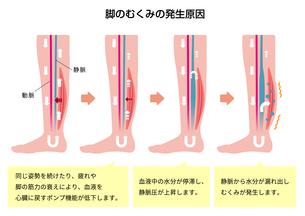 脚のむくみ(浮腫)の発生原因・過程 イラストのイラスト素材 [FYI04745341]