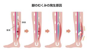 脚のむくみ(浮腫)の発生原因・過程 イラストのイラスト素材 [FYI04745342]