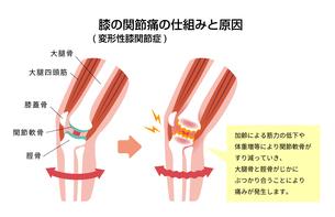 膝の関節痛(変形性膝関節症) 発生の仕組みと原因 イラストのイラスト素材 [FYI04745346]