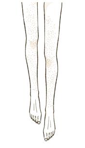 肌荒れや肌トラブルを抱える女性の脚のイラスト素材 [FYI04787544]