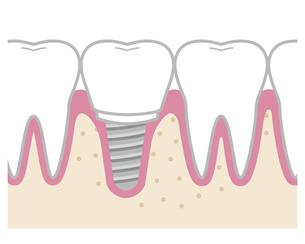 歯 インプラントのイラスト素材 [FYI04795638]