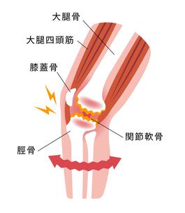 膝の関節痛(変形性膝関節症) 発生の仕組みと原因 イラストのイラスト素材 [FYI04802391]