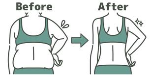 肥満の女性とスリムな女性の二の腕-ビフォーアフター-2色のイラスト素材 [FYI04809646]