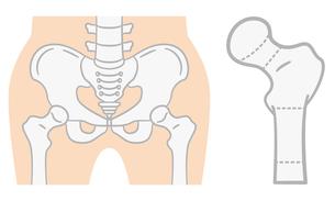 大腿骨近位部の分類のイラスト素材 [FYI04867385]