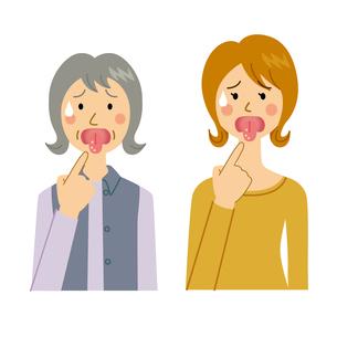 口内炎を患う女性のイラスト素材 [FYI04898488]
