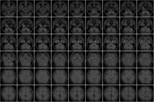 頭部MRIのサムネイルの写真素材 [FYI04899584]