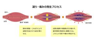 肩こり(凝り)・痛みの発生プロセス イラストのイラスト素材 [FYI04939260]