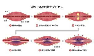 肩こり(凝り)・痛みの発生プロセス( 6ステップ) イラストのイラスト素材 [FYI04939265]