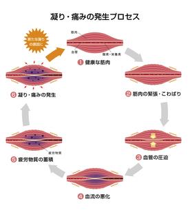 肩こり(凝り)・痛みの発生プロセス (6ステップ/サークル) イラストのイラスト素材 [FYI04939268]