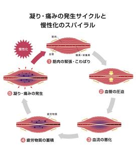 肩こり(凝り)・痛みの発生サイクルと慢性化プロセス イラストのイラスト素材 [FYI04939271]