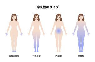 女性の冷え性・体の冷え / タイプ別イラストセットのイラスト素材 [FYI04941467]