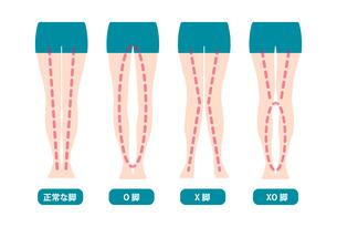 脚の形状イラストセット(X脚, O脚, XO脚)のイラスト素材 [FYI04941470]