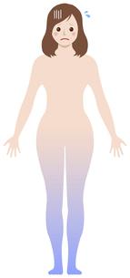 女性の冷え性・体の冷え / タイプ別イラスト (下半身型)のイラスト素材 [FYI04941482]