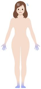 女性の冷え性・体の冷え / タイプ別イラスト (四肢末端型)のイラスト素材 [FYI04941483]
