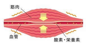 こわばった筋肉により圧迫された血管/ 肩こり・凝り・痛みの発生イラストのイラスト素材 [FYI04941499]
