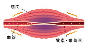 血流の悪化により酸素・栄養不足になった筋肉 / 肩こり・凝り・痛みの発生イラストのイラスト素材 [FYI04941502]