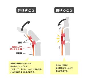 ばね指・バネ指 (弾撥指) / 原因と症状 骨格解剖図イラストのイラスト素材 [FYI04941523]