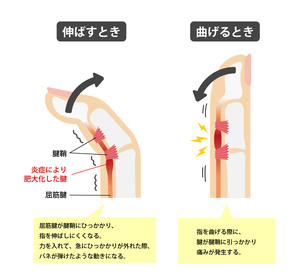 ばね指・バネ指 (弾撥指) / 原因と症状 骨格解剖図イラストのイラスト素材 [FYI04941530]