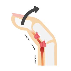 ばね指・バネ指 (弾撥指) / 原因と症状 骨格解剖図イラスト / 伸ばすときのイラスト素材 [FYI04941533]