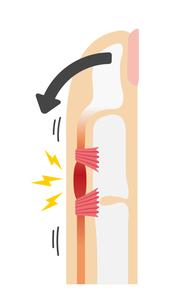 ばね指・バネ指 (弾撥指) / 原因と症状 骨格解剖図イラスト / 曲げるときのイラスト素材 [FYI04941534]